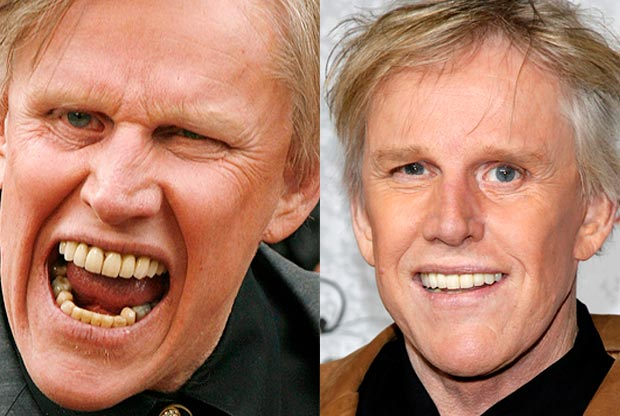 celebs who owe their smiles to cosmetic dentistry dr