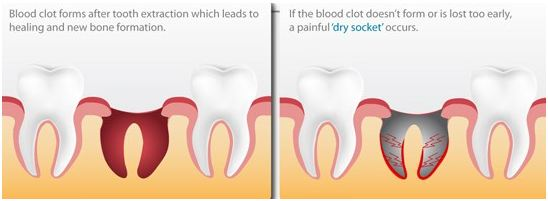 Dry Sockets: Symptoms, Treatment and Prevention - Dr
